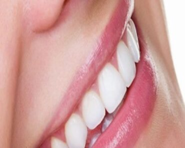 Teeth Whitening Cost Is Free Want Help On Getting White Teeth? Read These Tips